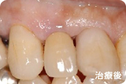 caries_case_01_after