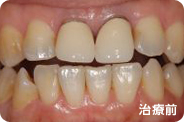 caries_case_01_before